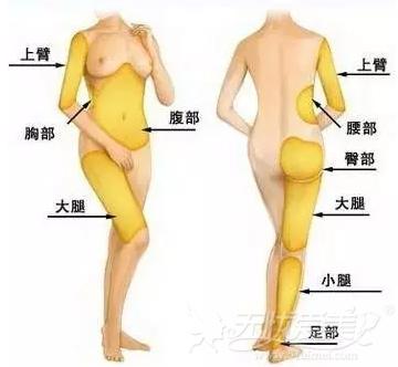 韩国will整形外科自体脂肪移植选取