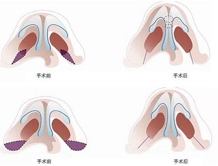 韩国will蒜头鼻、钝平鼻头所需的鼻尖手术