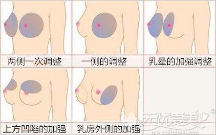 玻尿酸注射丰胸可注射位置