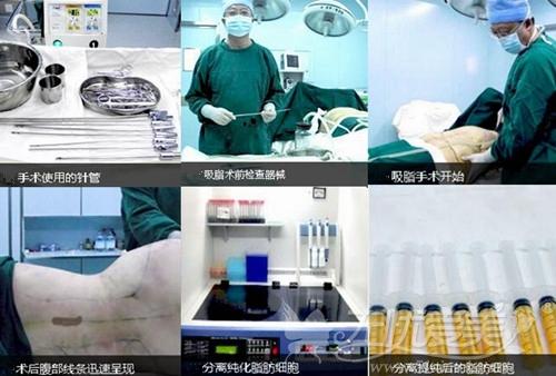 大连瑞丽360°环形吸脂手术过程
