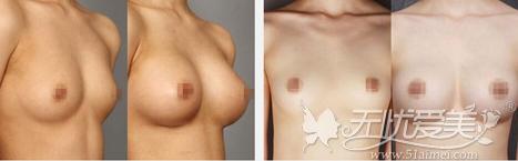 凉山爱丽诺整形医院假体隆胸前后对比案例