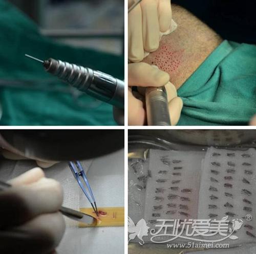 北京八大处蒋文杰医生讲解FUT植发技术优缺点