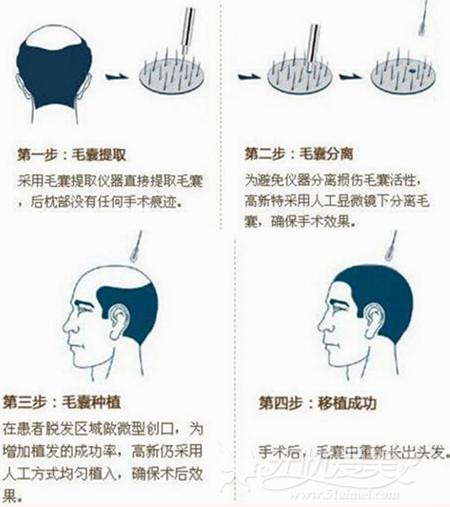 北京八大处蒋文杰医生讲解FUE植发技术优缺点