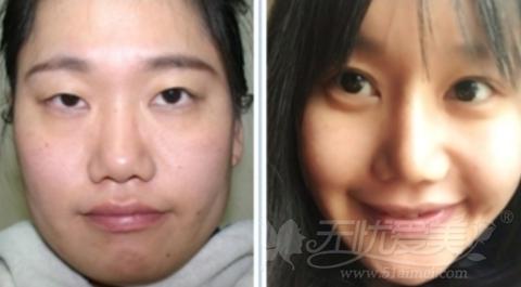 安妮在韩国灰姑娘整形医院做面部轮廓手术前后对比
