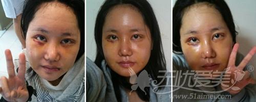 安妮在韩国灰姑娘整形医院面部轮廓手术后3天