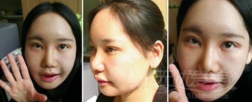 安妮在韩国灰姑娘整形医院面部轮廓手术后一周