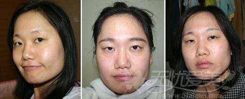安妮在韩国灰姑娘整形医院面部轮廓手术前照片