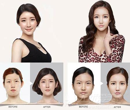 韩国贝缇莱茵PRP自体脂肪移植案例