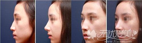 3D立体隆鼻前后对比案例
