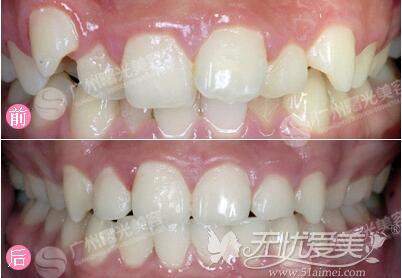广州曙光隐形矫正牙齿前后对比案例