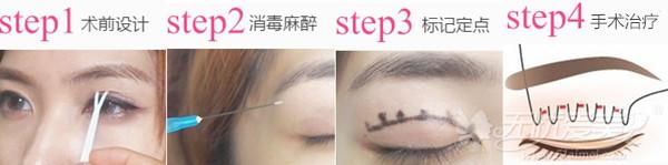 西安高一生双眼皮手术方法
