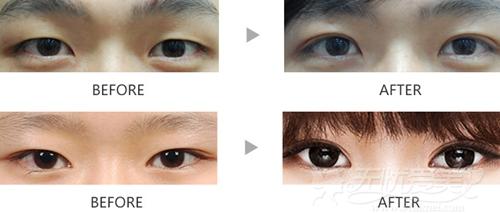 刘军 西安高一生双眼皮手术案例
