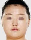 【真人案例】驻马店美兰德帮我改脸型后成为最美丽的新娘