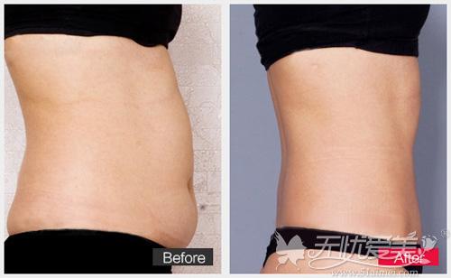 韩式分层吸脂紧肤术瘦腰腹前后对比案例