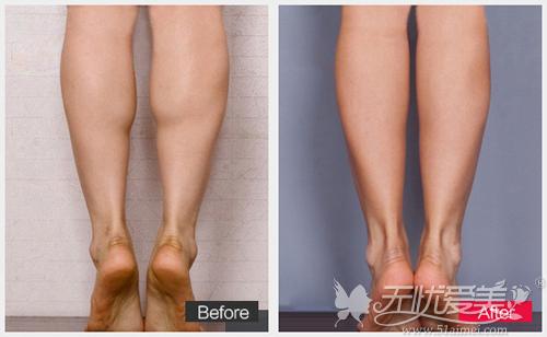 韩式分层吸脂紧肤术瘦小腿前后对比案例