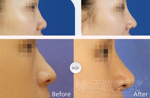 兰州亚韩整形医院鼻综合手术案例