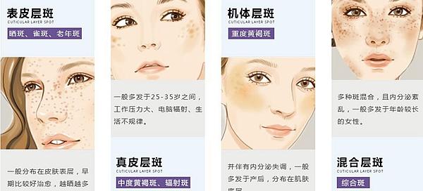皮肤常见的斑点种类