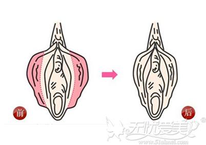 阴唇缩小术前后对比案例
