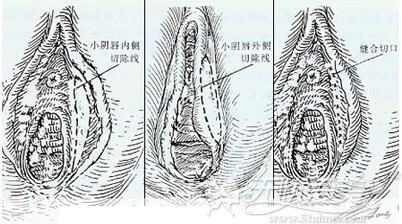 阴唇缩小术过程图解