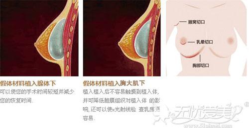 假体植入胸大肌筋膜下不会损害组织