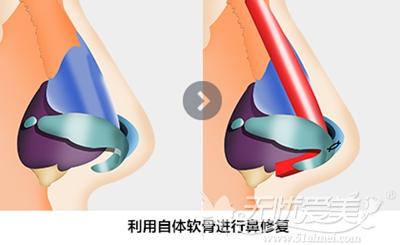 韩国will整形医院自体软骨进行鼻修复