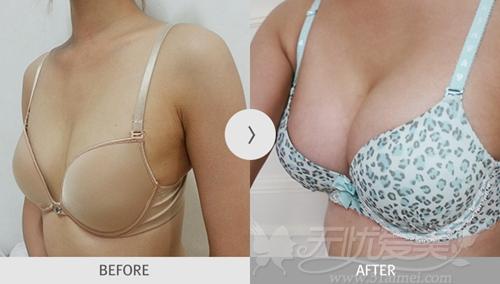 韩国麦恩整形外科假体隆胸手术后半年对比照片