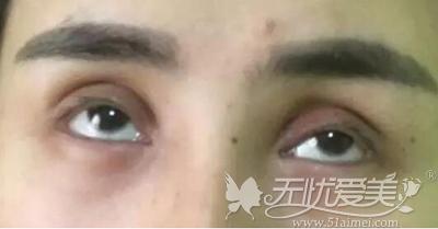 眼皮组织被祛除的太多无法做修复