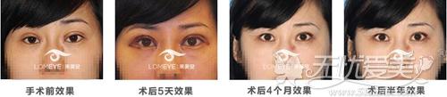 北京来美安双眼皮过宽修复恢复过程对比