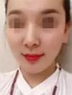 【真人案例分享】不动刀却年轻5岁 猜猜她脸上做了什么手脚术后