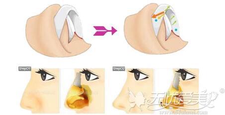 驼峰鼻矫正手术过程