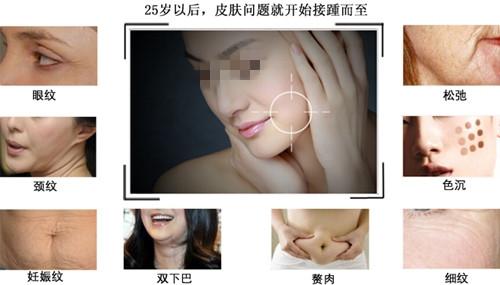 郑州秋涛热玛吉可以解决的肌肤问题