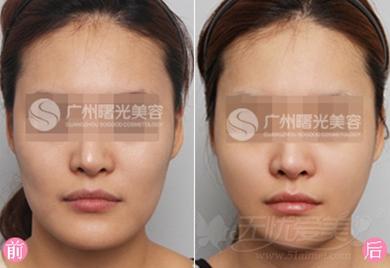 广州曙光下颌角整形案例