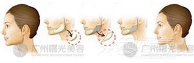 广州曙光下颌角磨骨术