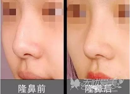 达拉斯隆鼻对比案例由袁伟医生实施手术