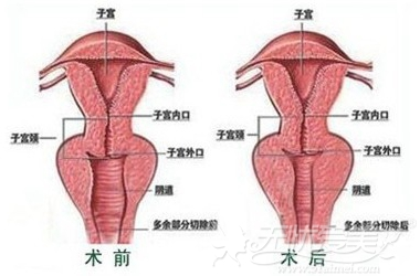 东莞韩美阴道紧缩术效果