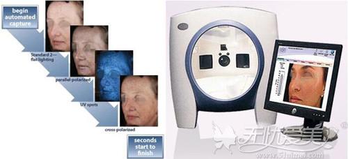 Visia 检测仪可以制定出不同的祛斑方案