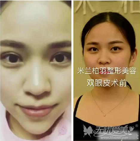 深圳米兰柏羽专家朱武根主任美杜莎双眼皮对比图