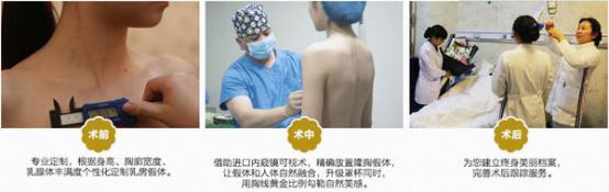 长沙雅美整形15分钟内窥镜隆胸术,让你的胸大不一样!