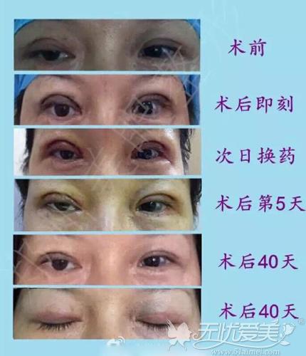 两次双眼皮修复案例