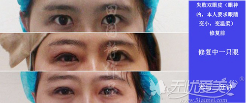 双眼凶狠修复案例