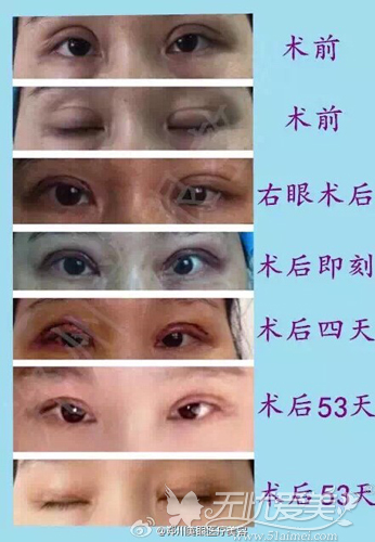 双眼皮大肉条修复案例