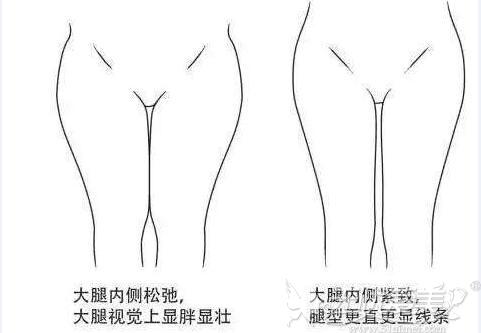 大腿粗的人更显胖