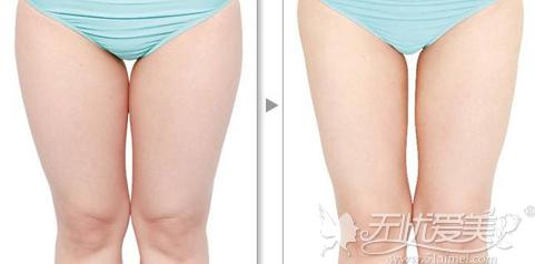 大腿部吸脂前后对比案例