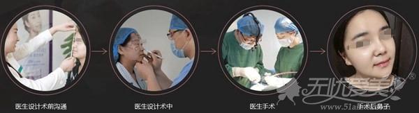 包头丽人达拉斯综合隆鼻手术设计
