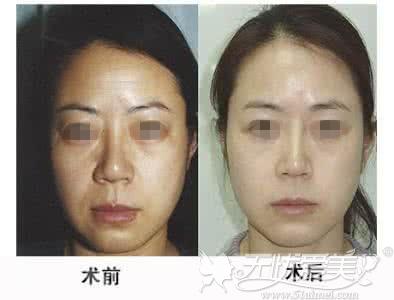 小切口除皱术前后对比案例