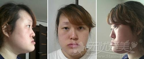 杨慧媛在韩国灰姑娘做面部轮廓+吸脂手术前