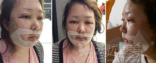 杨慧媛在韩国灰姑娘做面部轮廓+吸脂手术后第二天