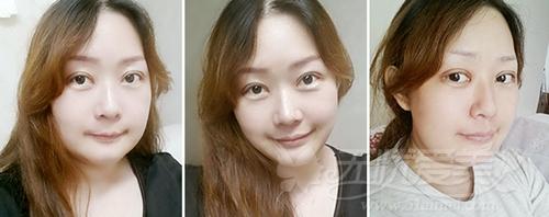 杨慧媛在韩国灰姑娘做面部轮廓+吸脂手术后二周