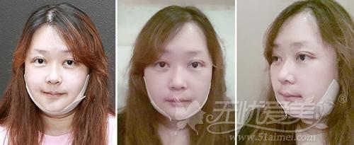 杨慧媛在韩国灰姑娘做面部轮廓+吸脂手术后一周