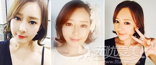 杨慧媛在韩国灰姑娘做面部轮廓+吸脂手术后半年